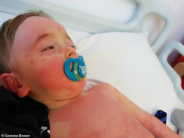Bertie Brown was admitted to the Royal Worcestershire hospital last month for his second birthday after developing a fever and rash on his body
