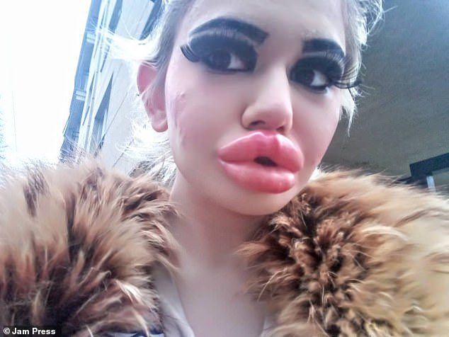 Though doctors have advised the student to stop having filler, Andrea has insisted she still wants her lips bigger. She is pictured after her twentieth lip injection