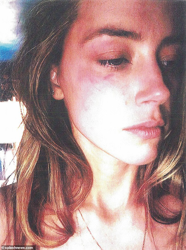 Injured: Trinity Esparza, a concierge service for the construction of THE Depp belonging to several units, the claims Heard had a bruise on his left cheek and two finger marks on his neck, whom she accused of Depp throwing a telephone at his