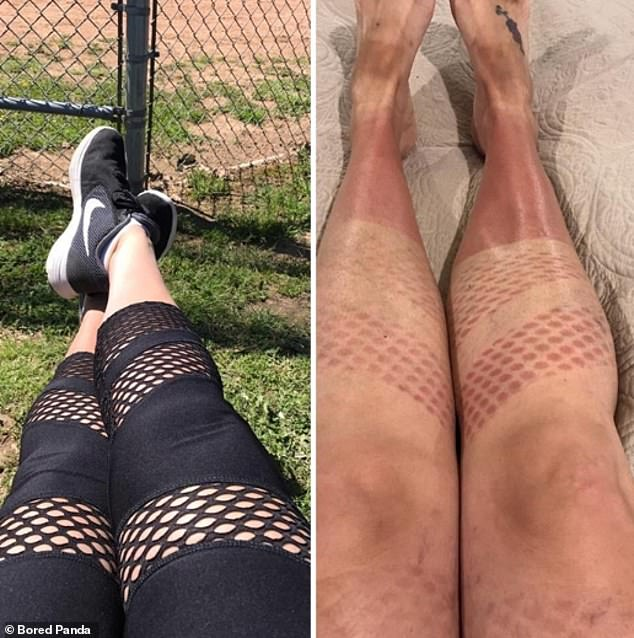 An anonymous woman, at an undisclosed location, has awkward tan lines after sitting in the sun while wearing cut-out gym leggings