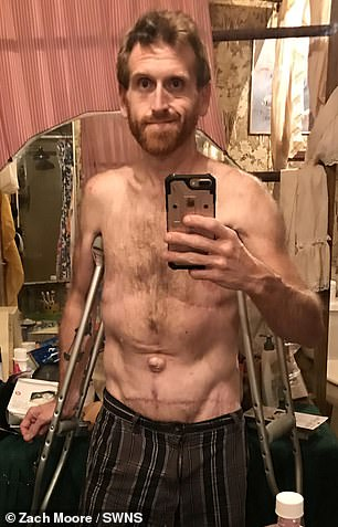 Inspiration: Zach was first motivated to get fit and healthy after suffering a horrific bout of food poisoning after eating a meal at Panda Express - which saw him lose 60lbs in a week