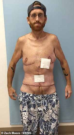 The final step: Months after his gastric bypass, Zach underwent surgery to remove his excess skin, which helped him to finally achieve the body he had been working towards