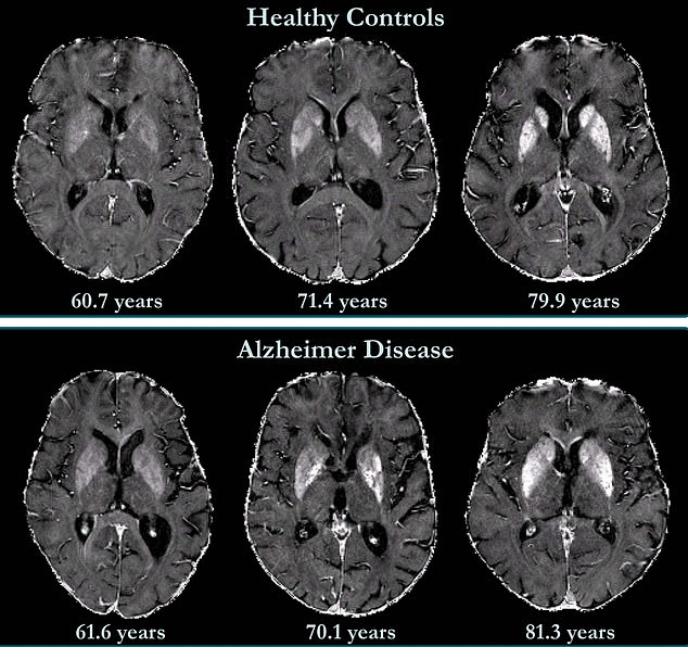 Brain maps of healthy control participants and participants with Alzheimer disease. Iron accumulation was associated with cognitive deterioration independently of brain volume loss. (Alzheimer's disease is associated with higher rates of brain tissue loss than normal ageing.)