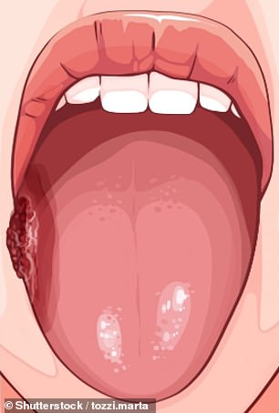 A persistent sore or lump on the side of the tongue is a sign of oral mouth cancer