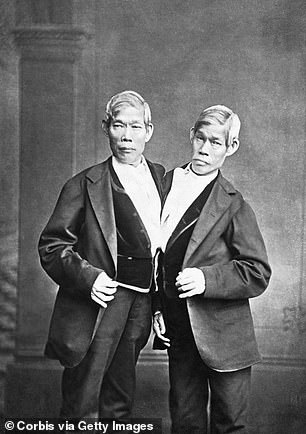 Chang and Eng Bunker, born in Thailand in 1811, became famous as 'the Siamese Twins' were the previous record holders as the longest living conjoined twins. They eventually settled in North Carolina, bought slaves, married local sisters, and fathered 21 children before they died at the age of 62