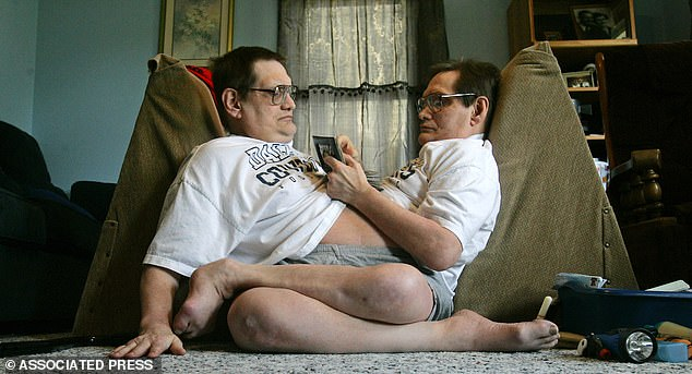 Donnie (left) and Ronnie Galyon sit inside their Dayton, Ohio, home in 2014, the same year they broke the Guinness Book of World Records as the oldest set of conjoined twins. The brothers were born fused from the chest down to their groin with a shared lower-digestive track. Each had their own heart, stomach and set of arms and legs