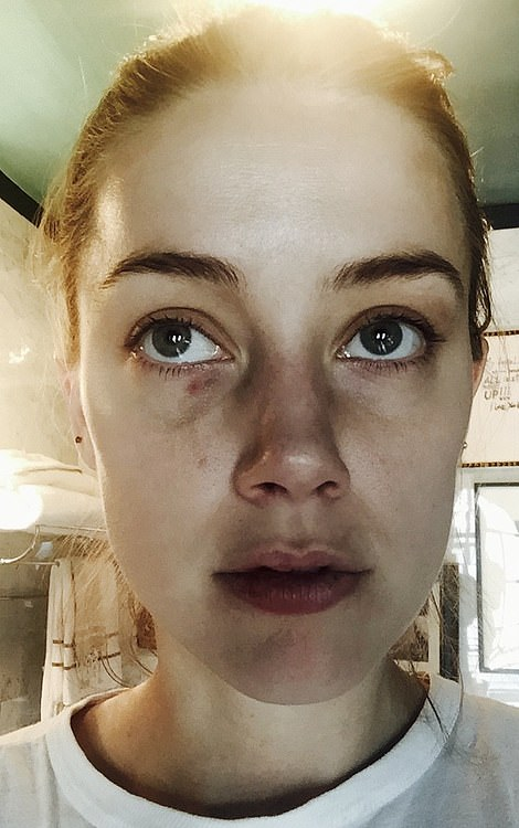 Other photos show bruising across the bridge of Heard's nose and beneath her eyes after Depp allegedly headbutted her in December 2015. The trial is hearing evidence about 14 such incidents