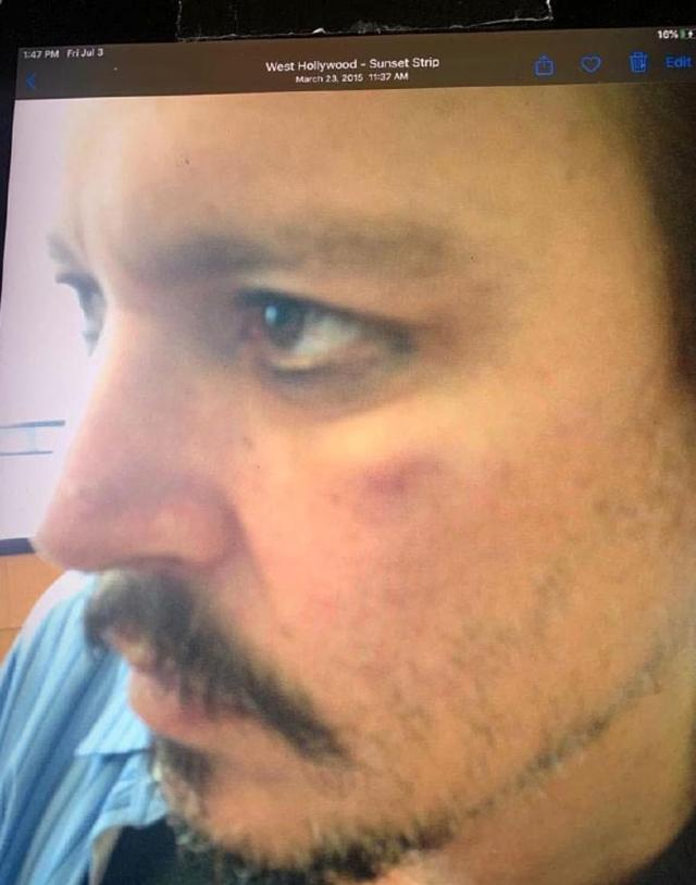 Johnny Depp's security guard Sean Bett today revealed a photograph of the actor with a black eye after his then-wife Amber Heard allegedly punched him. He said it was taken on April 2016, but the court heard claim it was actually March 2015