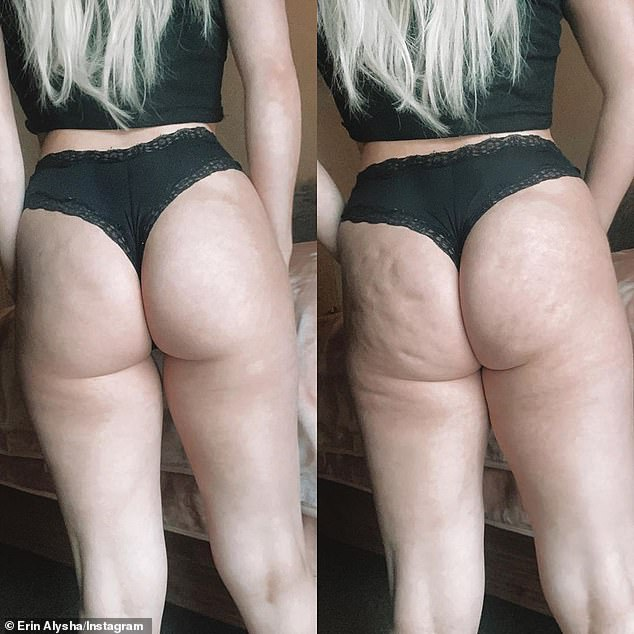 Perspective: At the time, the glamazon posted a before-and-after image of her backside to illustrate how social media influencers use clever photography trick to hide their cellulite