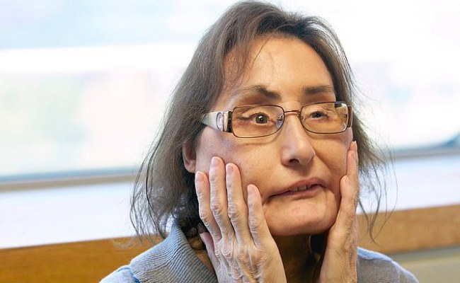 Woman 57 Who Underwent The First Face Transplant In The