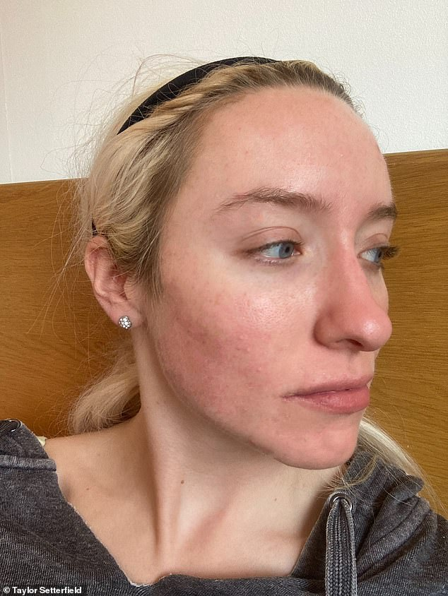 At 19, Taylor was referred to a dermatologist through her doctor, so the experts could help her as her acne was getting worse and worse. Pictured, after applying the product, on 6 July, 2020