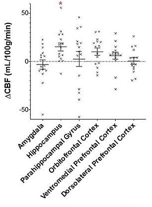 Les IRM ont montré que le CBD augmentait le flux sanguin vers l'hippocampe (deuxième à gauche), responsable des souvenirs et le cortex orbitofrontal (troisième à droite), responsable de la prise de décision