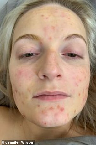 The young woman who suffered severe cystic acneafter she underwent an intense exfoliating treatment