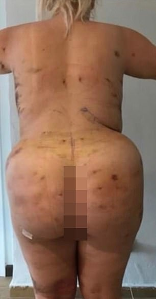 The 23-year-old said she regrets the surgery, which has left her with bruising and scarring all over her body