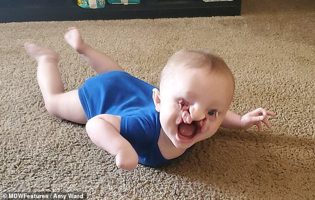 Overcoming obstacles: Elijah has a cleft lip and palate, and he also sustained damage to his left foot, his right hand, and his right eye, which is underdeveloped
