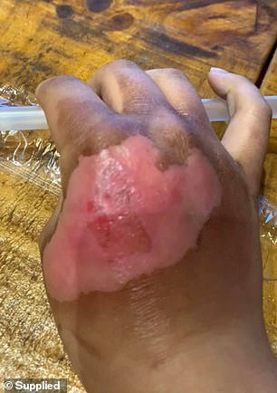 Day 5:In the following days, the dead skin began to peal back, revealing an unsightly wound underneath