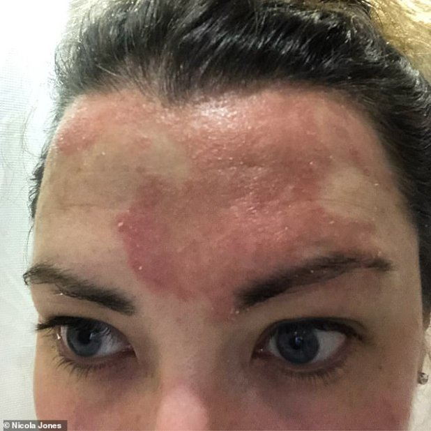 Nicola Jones, 33, of Buckinghamshire, who lives with 35-year-old partner Dan, an electrical engineer, first had scalp psoriasis when she went to university at the age of 19.