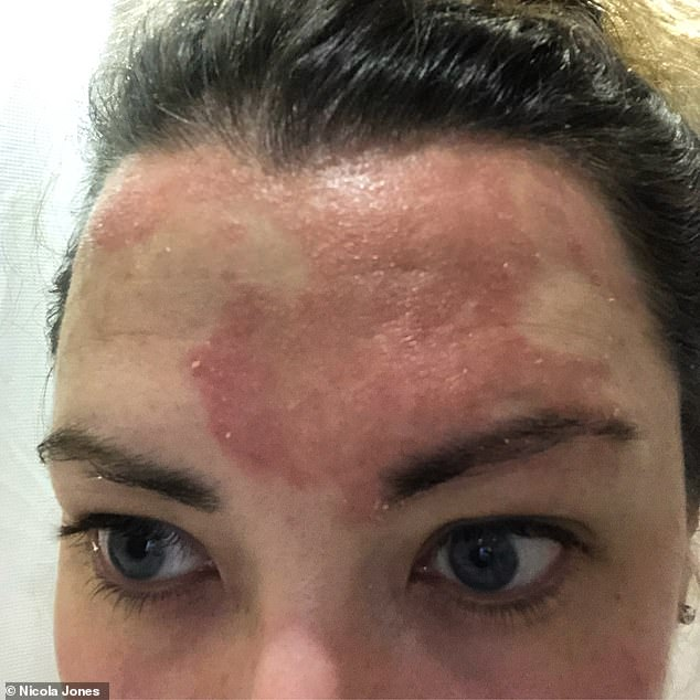 Nicola Jones, 33, from Buckinghamshire, who lives with partner Dan, 35, an electrical engineer, first got scalp psoriasis when she went to university, aged 19. Pictured, at its worst
