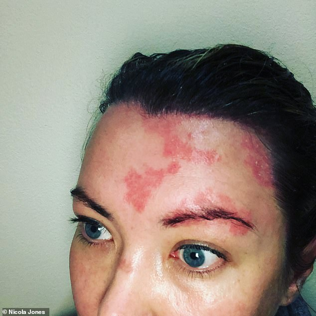 Nicola said she thought the psoriasis was dandruff at first and so she tried various over the counter anti-dandruff shampoos from the chemist which made it much worse. Pictured, at its worst
