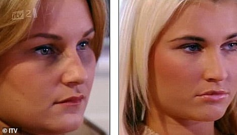 Bruised: In 2011, Sam and Billie were victims of a horrifying assault by a gang of girls, admitting she thought 'I was going to die'. Sam, then- 20, was beaten until she was unconscious after she was lured to an estate near Chigwell, Essex on false pretenses  (pictured on TOWIE after the attack)