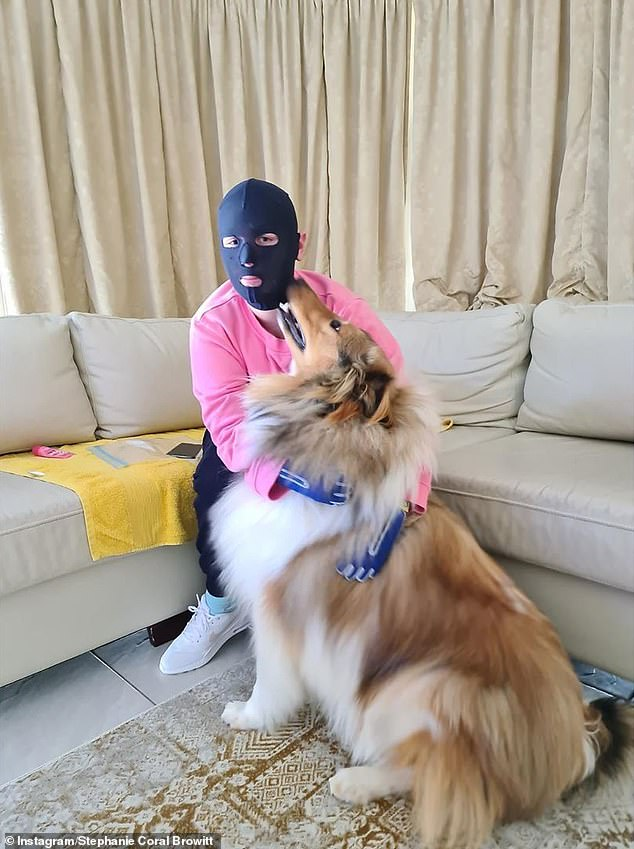 Ms Browitt is among 26 survivors of the blast and now wears a face mask to protect her skin