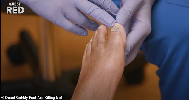 When Dr Shaeffer removes Robert's shoes and socks, he reveals a half chipped, flaky set of toenails and some of the foulest toenail fungus he's ever seen (pictured)