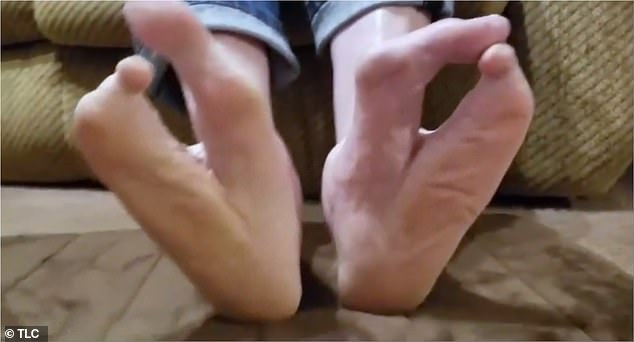 Deformed: Glen was born with ectrodactyly, a rare congenital condition that is characterized by the complete or partial absence of one or more fingers or toes