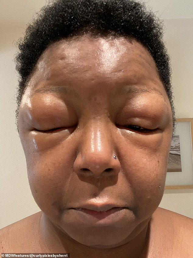 The hair stylist said her face ballooned so much (pictured) that she couldn't open her eyes and had to shave her head - and it took four weeks to improve