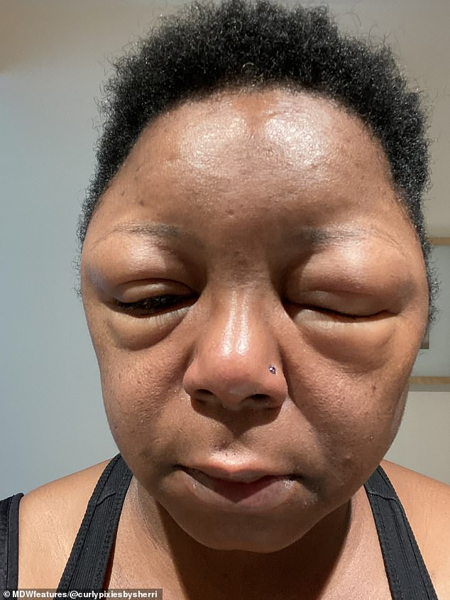 Two days after dying her hair, Sherrie's glasses were tight on her face and her head had swollen up so much she could not open her eyes and she struggled to see (pictured)