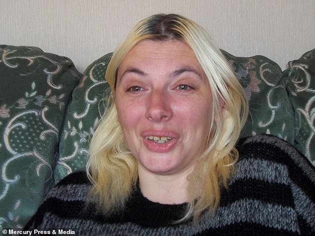 Alyson (pictured before the operation) had already most of her teeth missing due to calcium deficiency