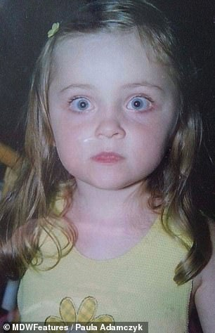 Paula, pictured as a child, has suffered with eczema her entire life