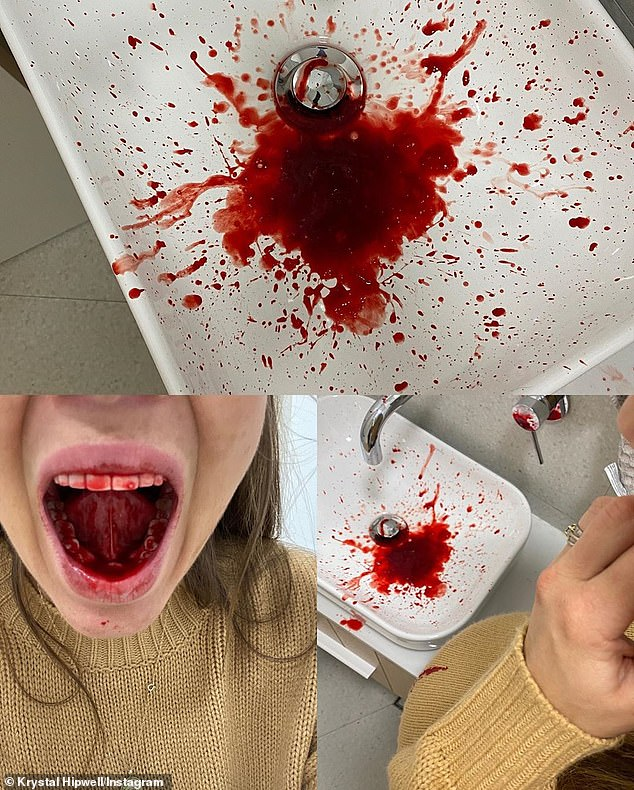 Finally, most women were shocked by Krystal's image of a blood-filled sink, which she said was the result of a 'mouth tumour' (pictured)