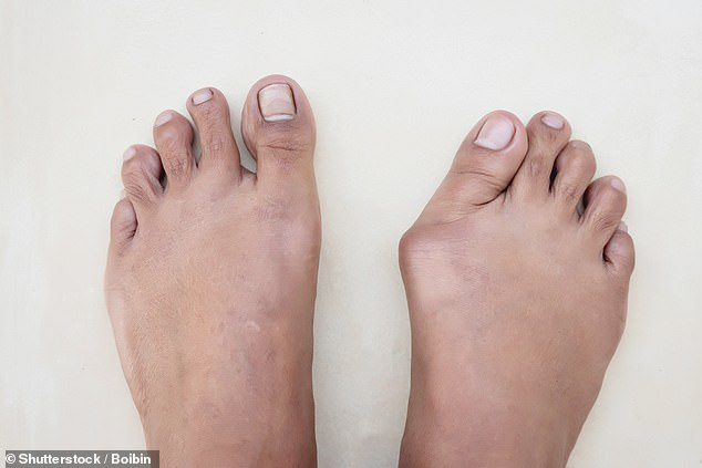 Bunions are a very common problem, with around a third of over-65s affected, the majority of them women (file image)