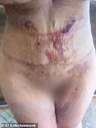 Ouch: Jessica wanted 'bigger breasts' and more skin removed, so she went to Tijuana to have another round of surgeries. The surgeon applied surgical tape directly onto her wounds