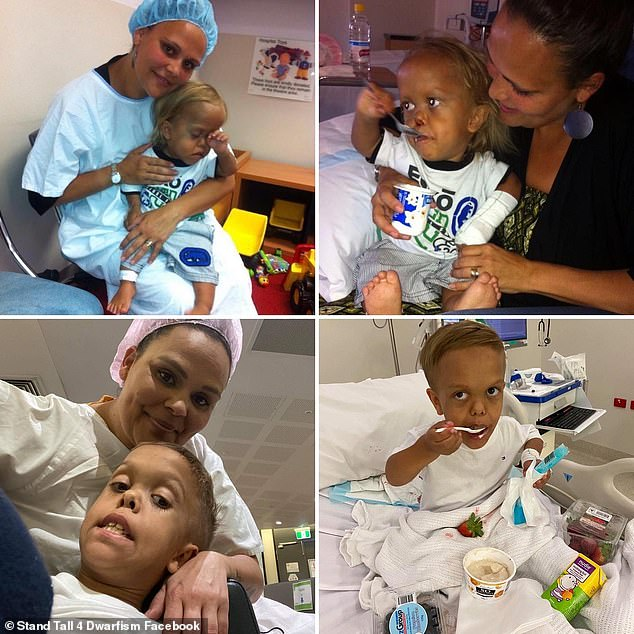 Top row shows Quaden at just three years old when he underwent surgery for the first time to remove seven teeth. Bottom row was Quaden on Monday