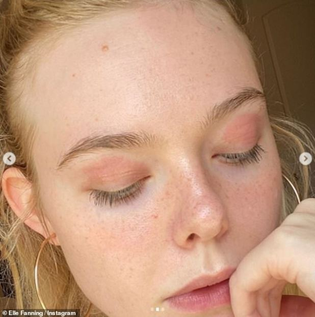 Praised: Elle Fanning was praised by fans on Monday night, when she shared candidly makeup-free photos showing her eczema