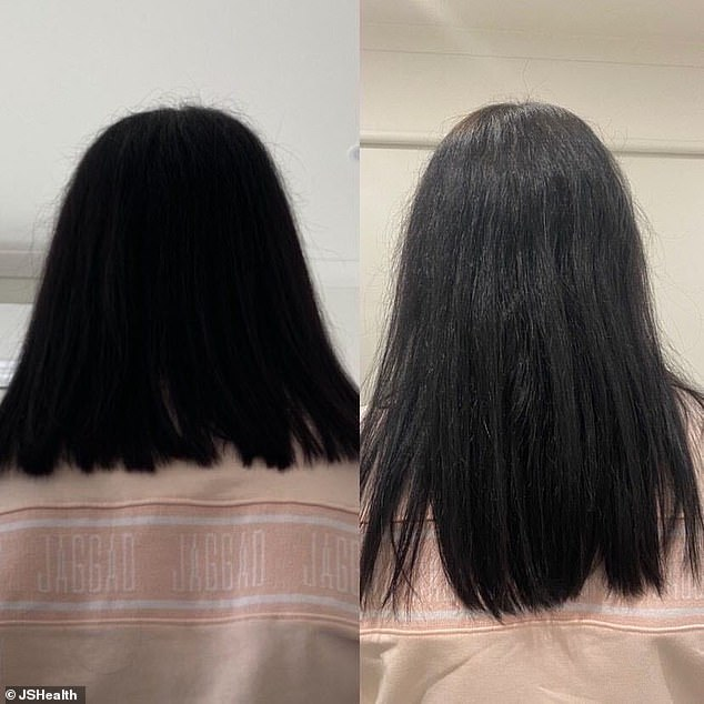 Lisa, 22, from Melbourne, started taking nutritionist Jessica Sepel's $44.99 Hair + Energy tablets in May this year (four months hair growth difference)