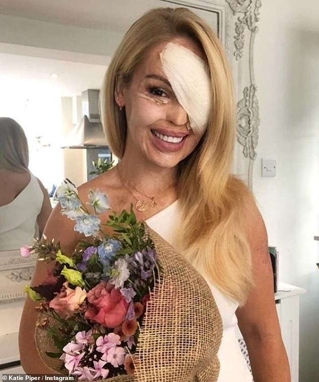 Road to recovery: Katie had to undergo a skin graft last month to have her lid replaced after struggling to open it as a result of a 2008 acid attack organised by her ex-boyfriend