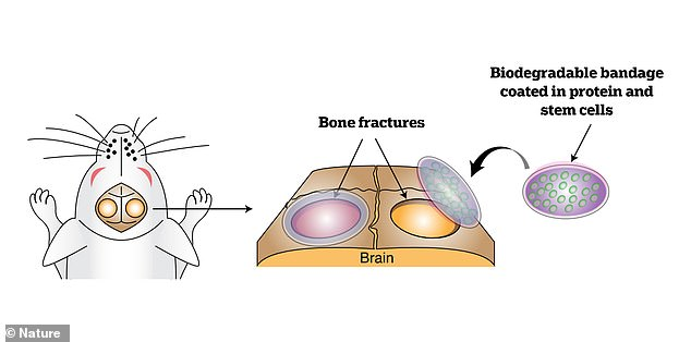 Researchers have successfully tested the biomaterial on mice in the lab. Bone defects are on the calvaria, the top part of the skull.