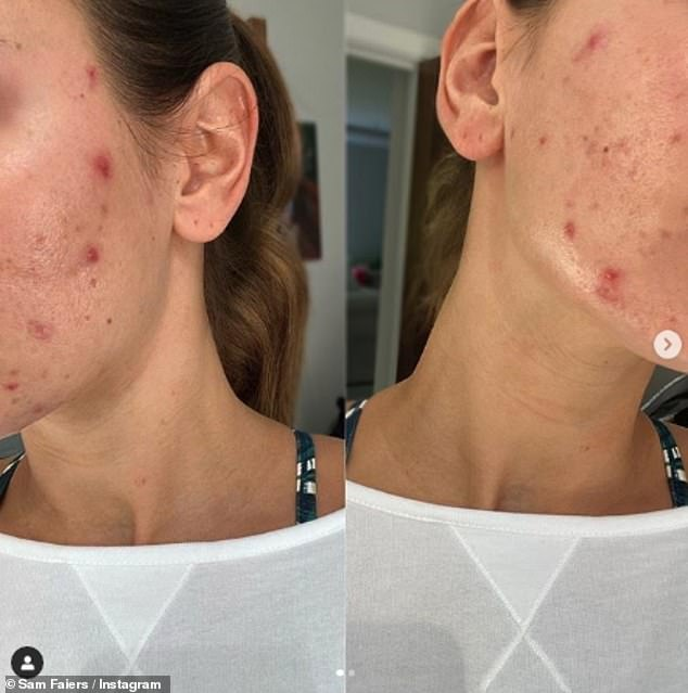 Difficult:The former TOWIE star said her confidence took a huge hit after her acne flared up when she began breastfeeding her daughter Rosie two years ago