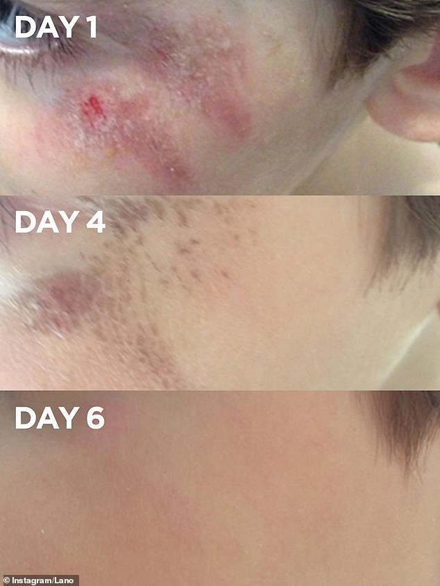 It helps to eliminate burns and scars when the wound is fresh (pictured on the face)