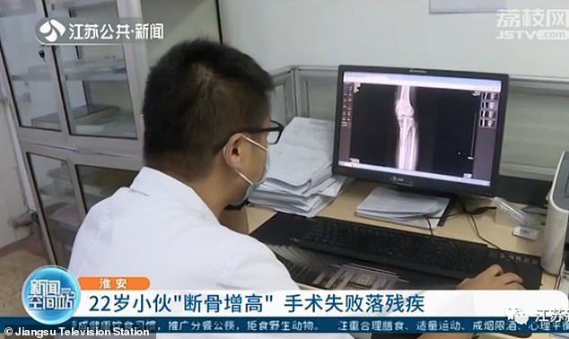 The 22-year-old, who remains unidentified, had travelled oversea to receive the surgery in a bid to become 5ft9 after feeling insecure about his height for years, reported Chinese media. The picture shows Dr Wang Lei from the Jiangsu hospital looking at the patient's CT scan