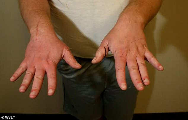 This image shows deep cuts and scratches visible on both his hands at the time of his arrest