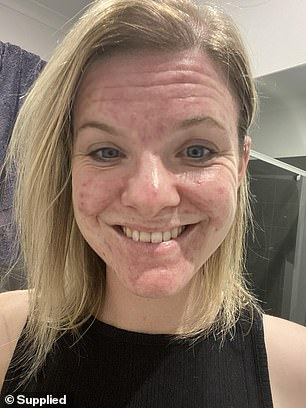 Despite her acne battle, the 28-year-old managed to banish the blemishes for good