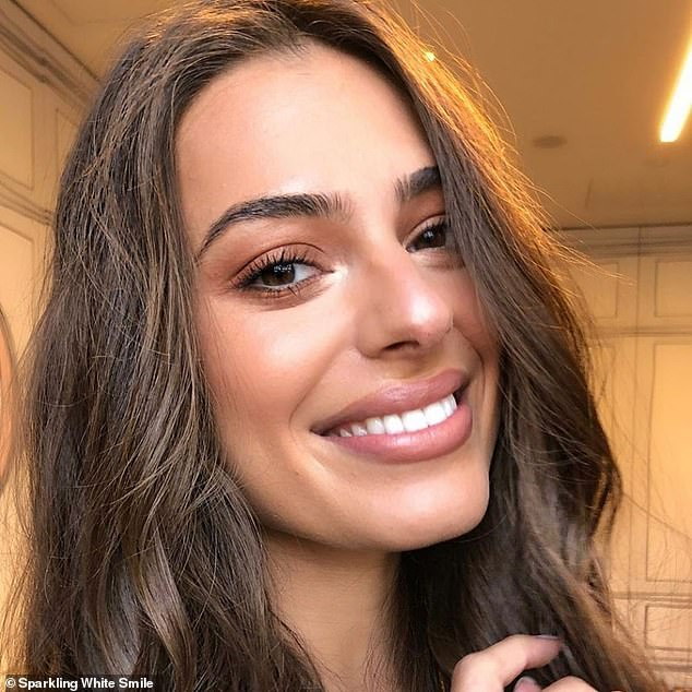 The treatments incorporate peroxide gels, a laser accelerator lamp to rapidly activate the whitening gel and of course, their highly trained and dedicated technicians (a client's results are pictured)