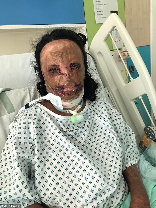 Student Aleema Ali, 16, (pictured in hospital) from Bradford, was 12-years-old when she was left with burns all over her body