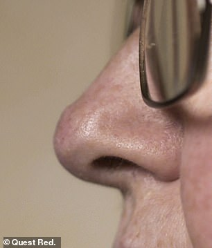 Jo's nose after (pictured)