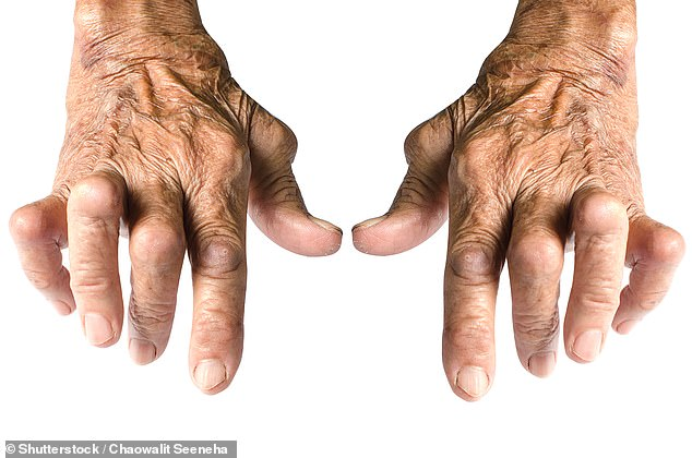 Called baricitinib, and marketed under the brand name Olumiant, the arthritis drug is a relatively new drug for rheumatoid arthritis that has only been available for three years.