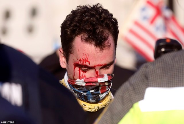 The Trump supporter was bleeding from his head after being beaten in front of Union Station on Saturday