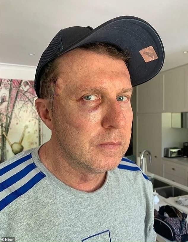 Mr Overton (pictured) hopes his plight will inspire Australians to get regular skin checks